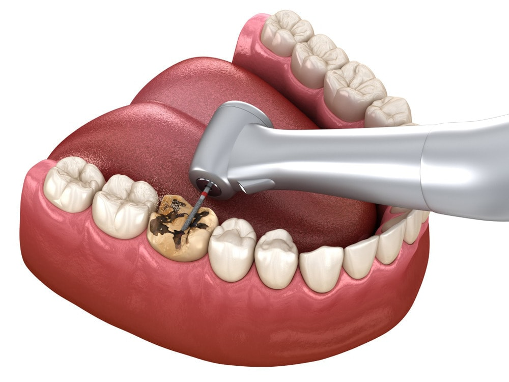 odontoterapia